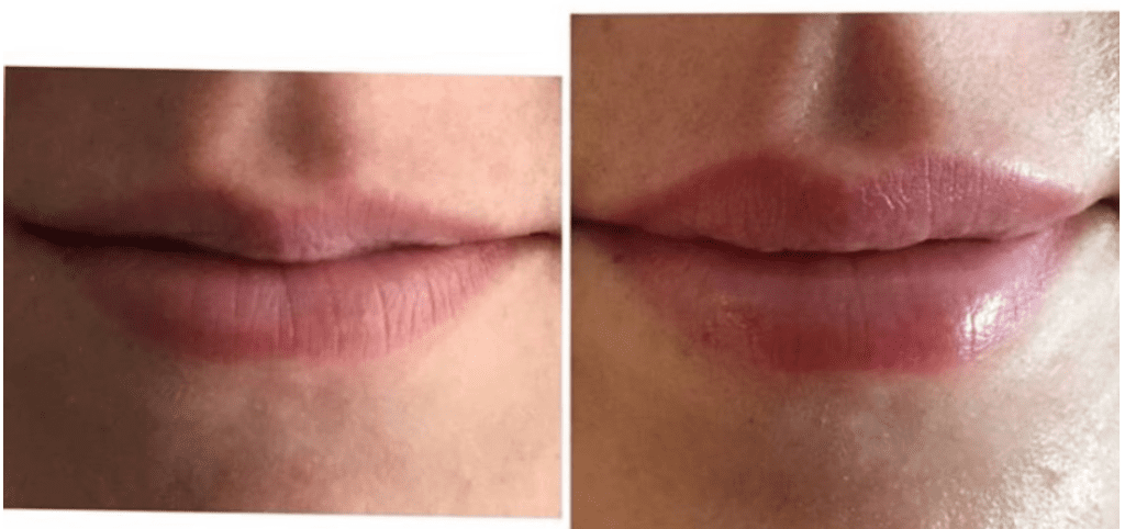Filler: Before & After